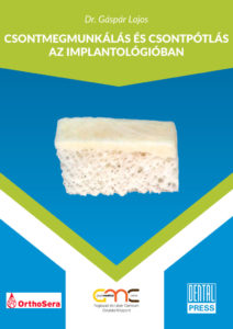 csontmegmunkalas-az-implantologiaban