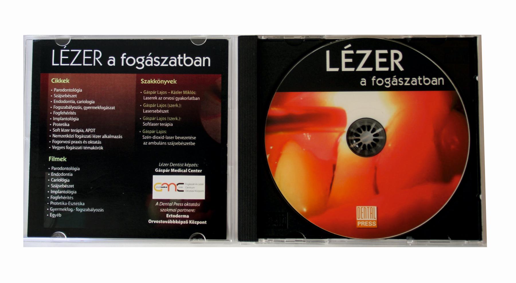 lézer a fogászatban cd